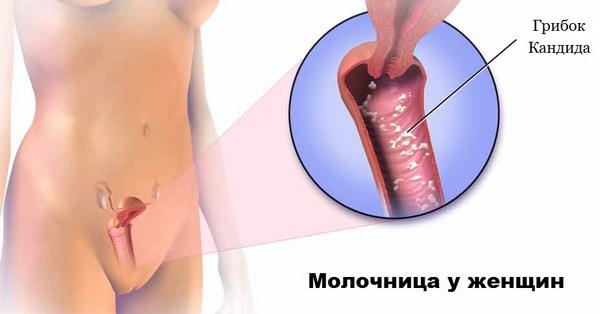 Развития заболевания молочницы